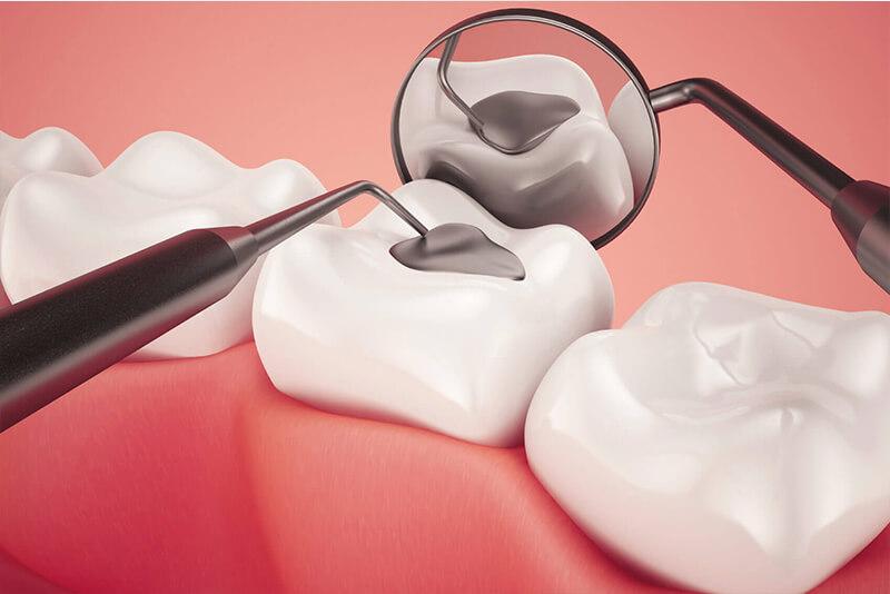 obturatii coronare plombe dentare