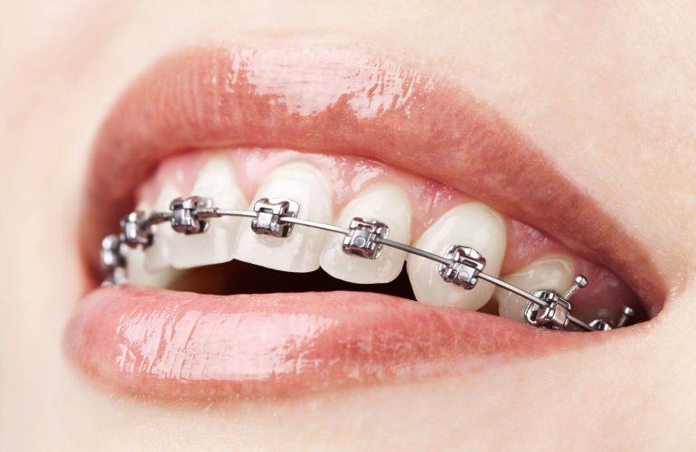 ortodontie aparate dentare bistrita