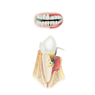 parodontoza avansata