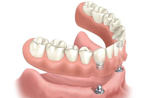 proteze dentare fixate pe implanturi dentare