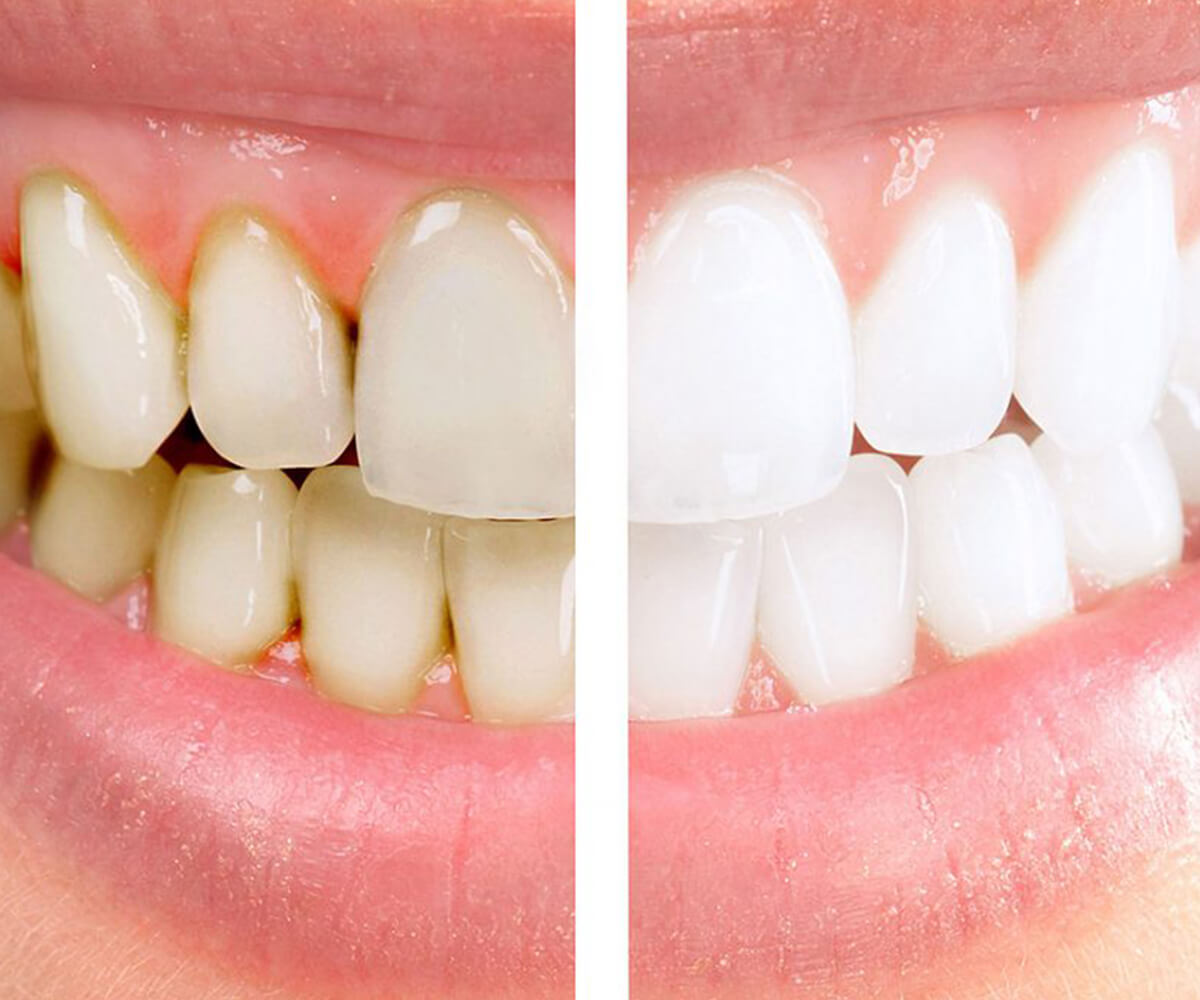 albire dentara radent center bistrita