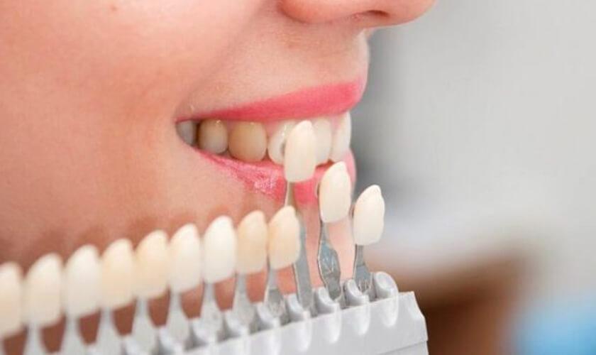 inscrustatii dentare