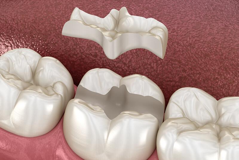 incrustatii inlay ceramice dentare
