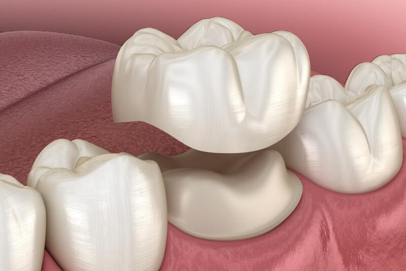incrustratii dentare ceramice onlay