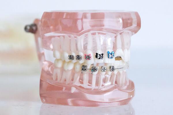 aparat dentar copil